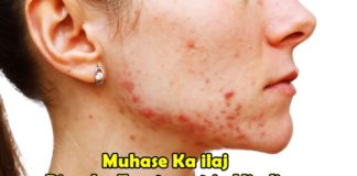 Muhase Ka ilaj Pimples Treatment in Hindi